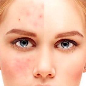 Zabiegi dla skóry