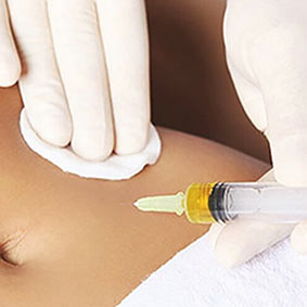 MESOTHERAPY_Body
